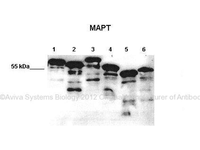 Western Blotting (WB) image for anti-Microtubule-Associated Protein tau (MAPT) (Middle Region) antibody (ABIN2783223)