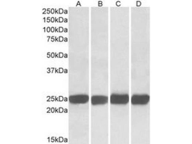 Western Blotting (WB) image for anti-Growth Factor Receptor-Bound Protein 2 (GRB2) (C-Term), (both Isoforms) antibody (ABIN257708)