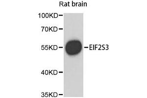 Image no. 1 for anti-Eukaryotic Translation Initiation Factor 2, Subunit 3 Gamma, 52kDa (EIF2S3) antibody (ABIN6569581)