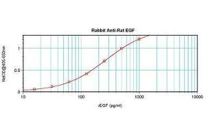 image for anti-EGF antibody (Epidermal Growth Factor) (ABIN465662)