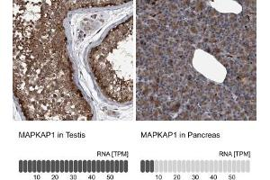 Immunohistochemistry (Paraffin-embedded Sections) (IHC (p)) image for anti-Mitogen-Activated Protein Kinase Associated Protein 1 (MAPKAP1) antibody (ABIN4353814)