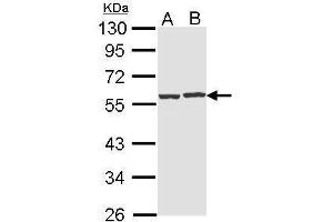 Image no. 1 for anti-CAP, Adenylate Cyclase-Associated Protein 1 (Yeast) (CAP1) (Center) antibody (ABIN2856872)