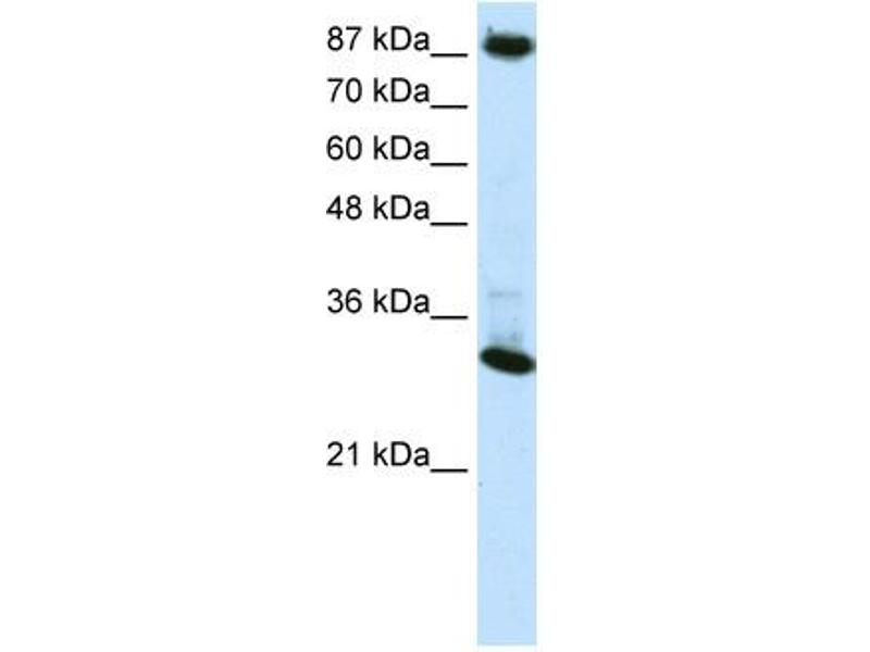 Western Blotting (WB) image for anti-CTCF 抗体 (CCCTC-Binding Factor (Zinc Finger Protein)) (N-Term) (ABIN2792571)