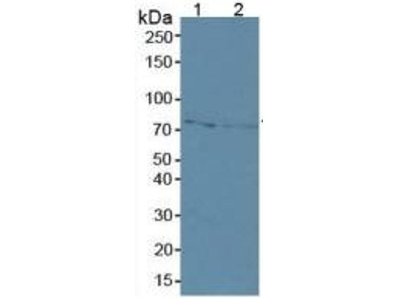 Matrix Metalloproteinase 2 (MMP2) ELISA Kit (4)