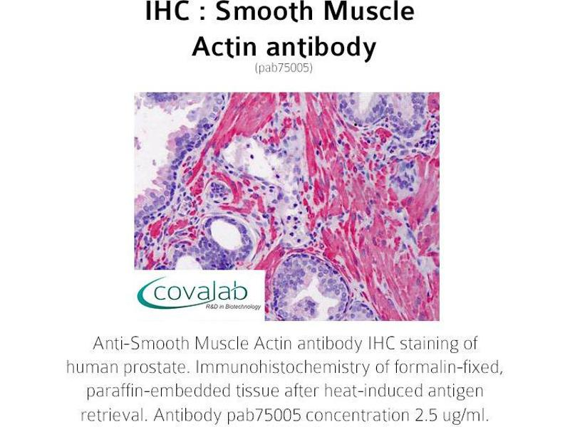 image for anti-Actin, alpha 2, Smooth Muscle, Aorta (ACTA2) (N-Term) antibody (ABIN1739465)