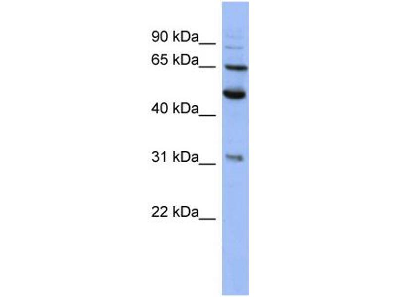 Western Blotting (WB) image for anti-Proteasome (Prosome, Macropain) 26S Subunit, Non-ATPase, 3 (PSMD3) (N-Term) antibody (ABIN503981)
