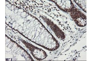 Immunohistochemistry (IHC) image for anti-Malignant T Cell Amplified Sequence 1 (MCTS1) (AA 1-181) antibody (ABIN2454240)