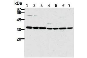 Western Blotting (WB) image for anti-CDK2 antibody (Cyclin-Dependent Kinase 2) (ABIN1106646)