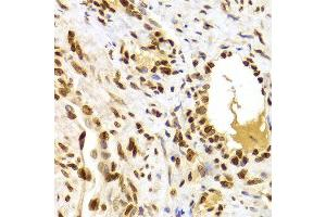 Image no. 7 for anti-High Mobility Group Box 1 (HMGB1) antibody (ABIN3023358)