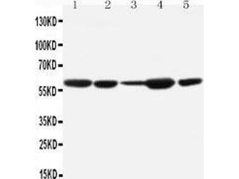 Western Blotting (WB) image for anti-Mdm2, p53 E3 Ubiquitin Protein Ligase Homolog (Mouse) (MDM2) (AA 103-119), (N-Term) antibody (ABIN3042608)
