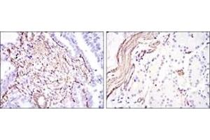 Immunohistochemistry (IHC) image for anti-Smooth Muscle Actin antibody (Actin, alpha 2, Smooth Muscle, Aorta) (ABIN1105232)