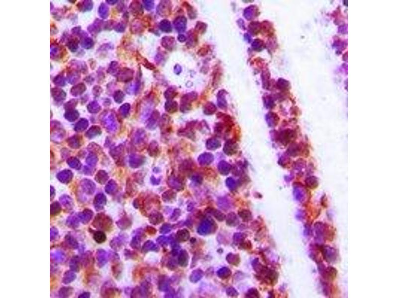 Immunohistochemistry (IHC) image for anti-WAS/WASL Interacting Protein Family, Member 1 (WIPF1) (C-Term) antibody (ABIN2801364)