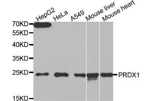 Western Blotting (WB) image for anti-Peroxiredoxin 1 antibody (PRDX1) (ABIN1874251)