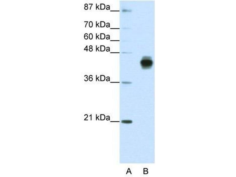 Western Blotting (WB) image for anti-KRT18 antibody (Keratin 18) (C-Term) (ABIN2778670)