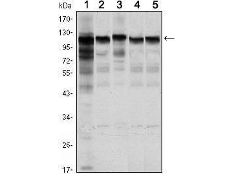 Western Blotting (WB) image for anti-Hexokinase 1 antibody (HK1) (ABIN1107523)
