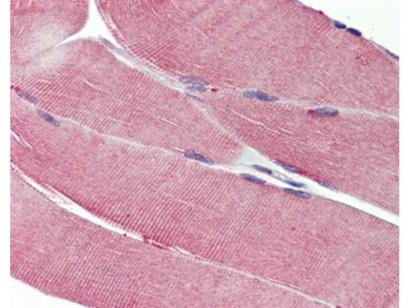 insulin like growth factor receptor pdf