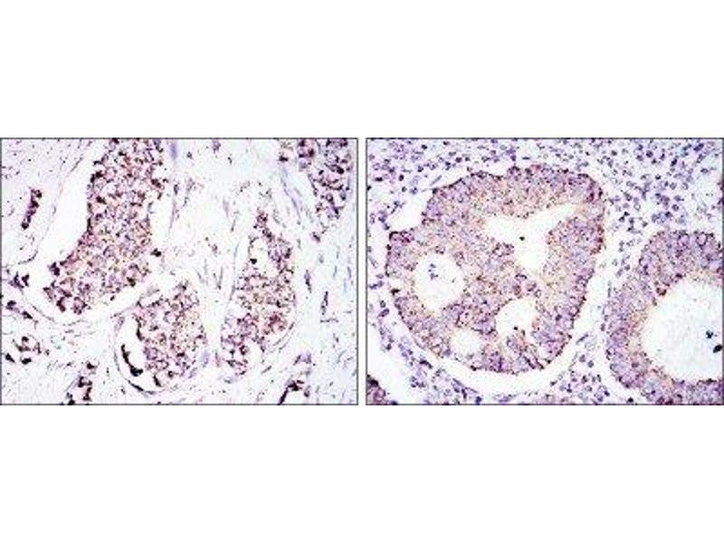 Immunohistochemistry (IHC) image for anti-Heat Shock 60kDa Protein 1 (Chaperonin) (HSPD1) antibody (ABIN4320144)