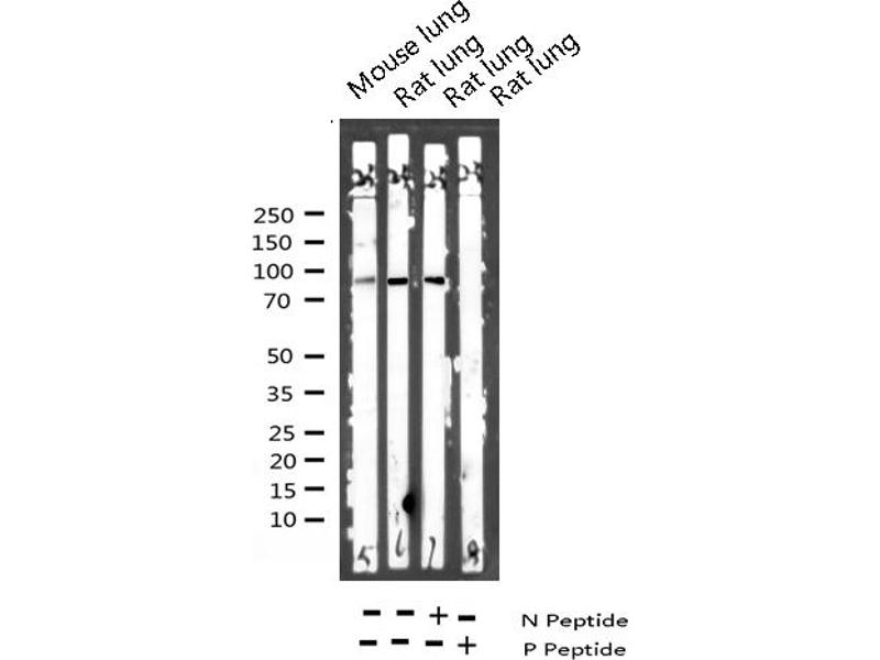 Western Blotting (WB) image for anti-Vav 1 Oncogene (VAV1) (pTyr174) antibody (ABIN6256653)