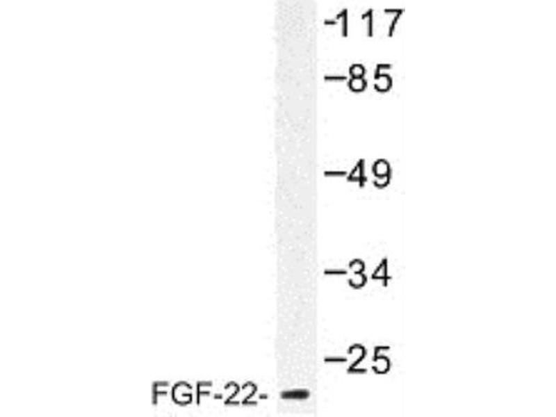 Western Blotting (WB) image for anti-Fibroblast Growth Factor 22 (FGF22) antibody (ABIN314589)