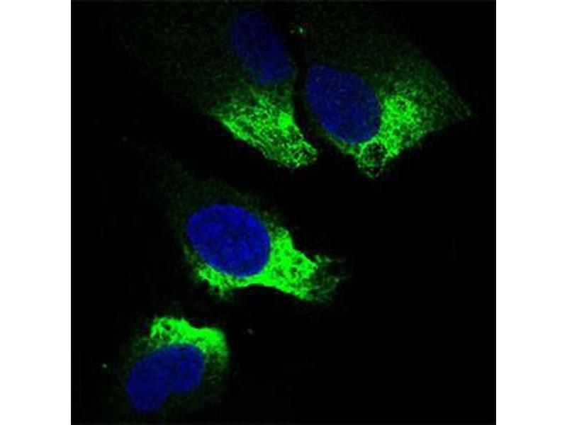 Immunocytochemistry (ICC) image for anti-Twist Homolog 1 (Drosophila) (TWIST1) (AA 9-74) antibody (ABIN1724845)