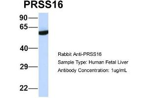 Image no. 1 for anti-Protease, serine, 16 (Thymus) (PRSS16) (Middle Region) antibody (ABIN2775328)