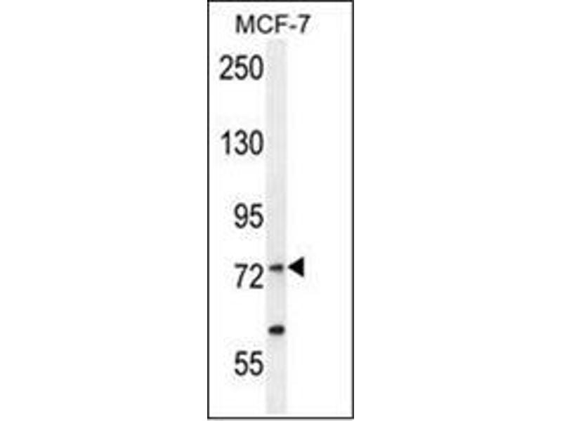 Western Blotting (WB) image for anti-RARS antibody (Arginyl-tRNA Synthetase) (AA 612-642) (ABIN954456)