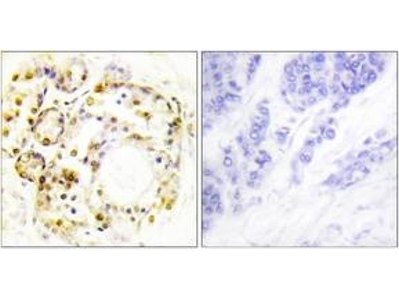 Immunohistochemistry (IHC) image for anti-MAPK6 antibody (Mitogen-Activated Protein Kinase 6) (pSer189) (ABIN1531591)