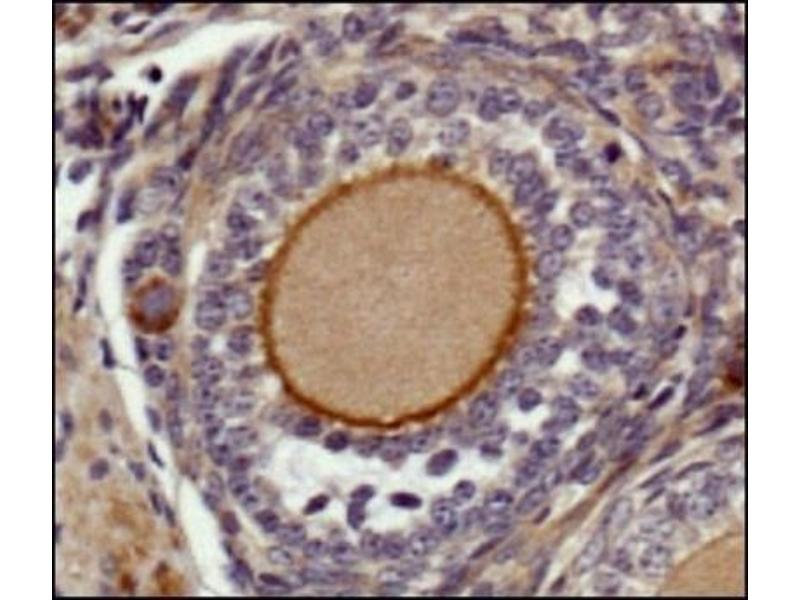 Immunohistochemistry (Paraffin-embedded Sections) (IHC (p)) image for anti-Epidermal Growth Factor (EGF) (Internal Region) antibody (ABIN446990)