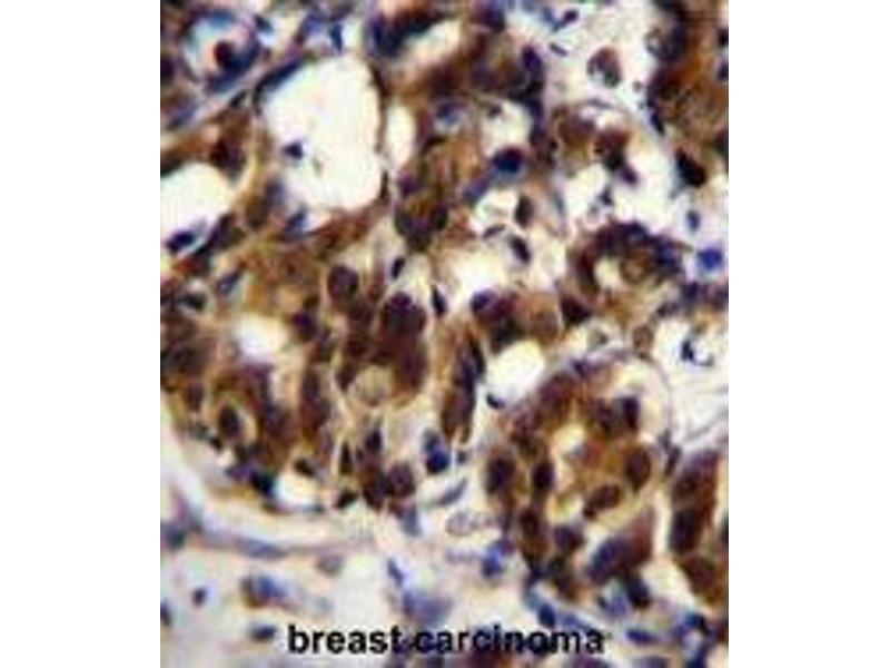 Immunohistochemistry (Paraffin-embedded Sections) (IHC (p)) image for anti-TNFRSF1A-Associated Via Death Domain (TRADD) (AA 133-159), (Middle Region) antibody (ABIN955307)