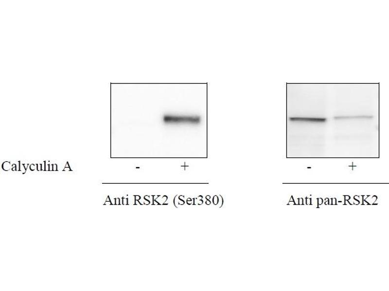 Activating Transcription Factor 2 (ATF2) ELISA Kit (2)