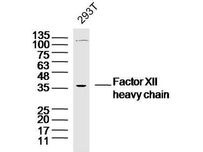 Western Blotting (WB) image for anti-Coagulation Factor XII (Hageman Factor) (F12) antibody (ABIN1387090)