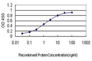 Image no. 4 for anti-Syndecan Binding Protein (Syntenin) (SDCBP) (AA 1-100) antibody (ABIN562830)
