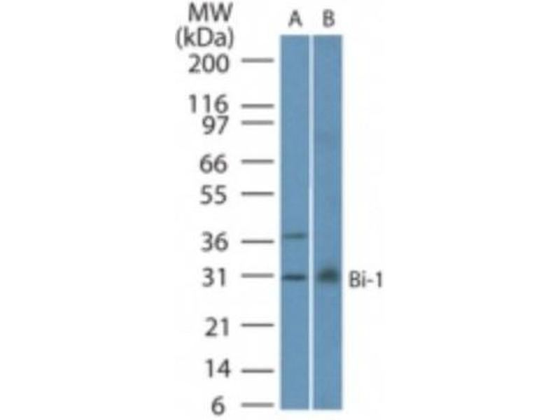 Western Blotting (WB) image for anti-Transmembrane BAX Inhibitor Motif Containing 6 (TMBIM6) (C-Term), (Internal Region), (N-Term) antibody (ABIN4283180)