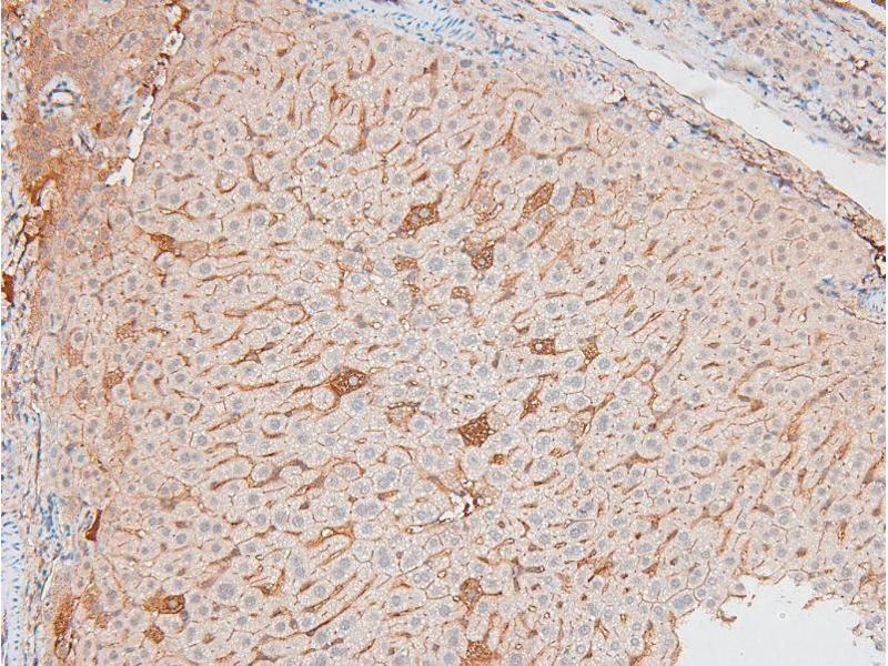 Immunohistochemistry (IHC) image for anti-Inhibitor of kappa Light Polypeptide Gene Enhancer in B-Cells, Kinase epsilon (IKBKE) (pSer172) antibody (ABIN6271478)
