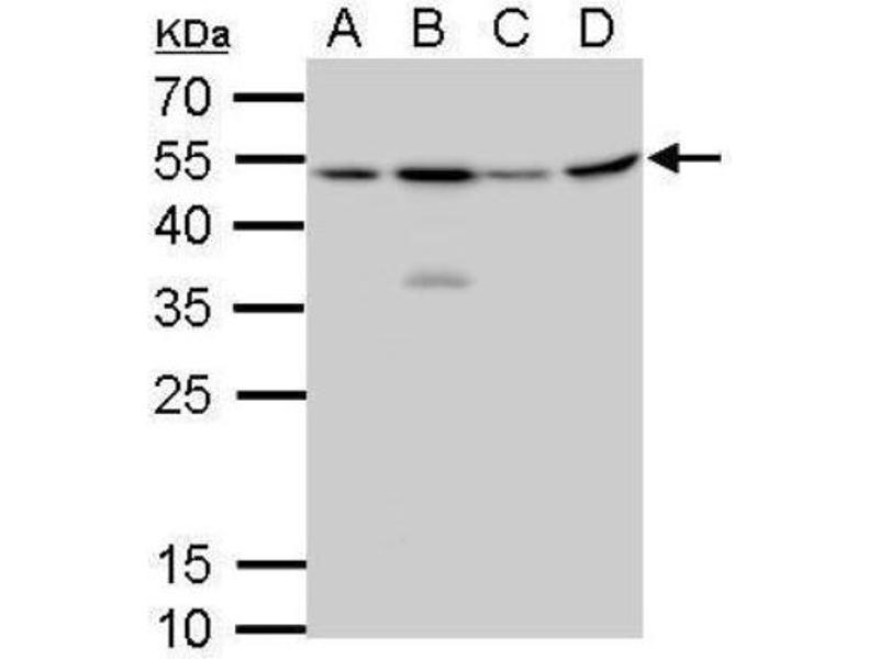 Western Blotting (WB) image for anti-Craniofacial Development Protein 1 (CFDP1) (Center) Antikörper (ABIN4265001)