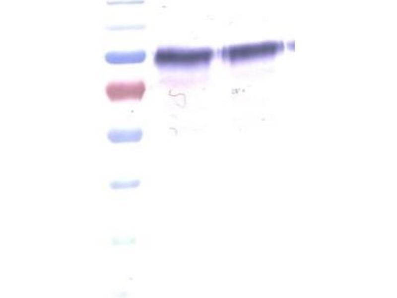Western Blotting (WB) image for anti-Fms-Related tyrosine Kinase 1 (Vascular Endothelial Growth Factor/vascular Permeability Factor Receptor) (FLT1) antibody (ABIN449642)