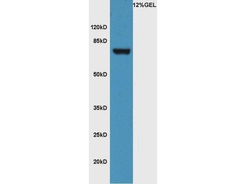 Western Blotting (WB) image for anti-Frizzled Family Receptor 3 (FZD3) (AA 150-200) antibody (ABIN1714171)