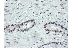 Image no. 4 for anti-Zinc Finger, BED-Type Containing 1 (ZBED1) antibody (ABIN1501794)