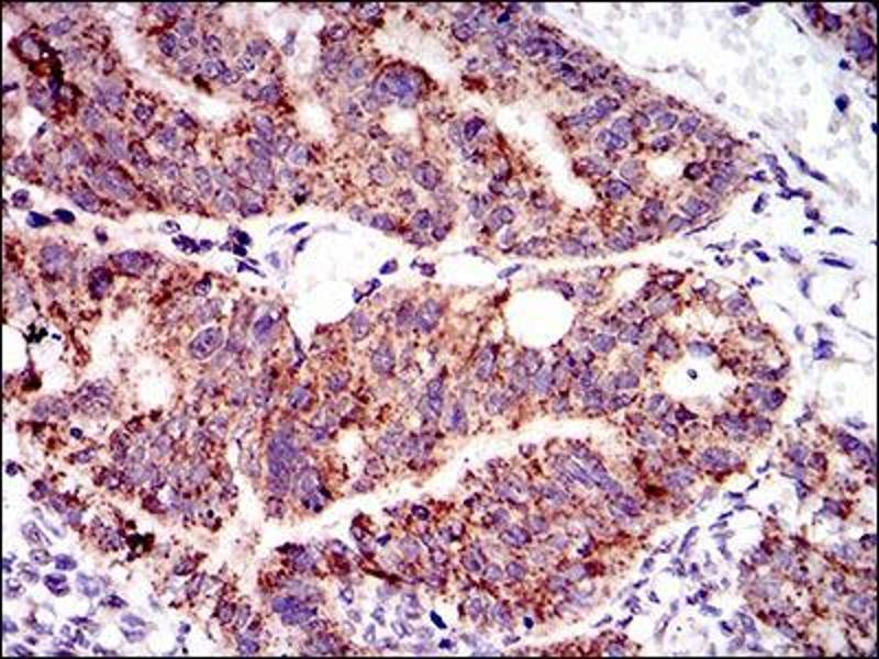 Immunohistochemistry (IHC) image for anti-PTPN11 Antikörper (Protein tyrosine Phosphatase, Non-Receptor Type 11) (AA 263-329) (ABIN1098117)