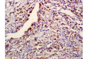 Immunohistochemistry (IHC) image for anti-PPM1D Antikörper (Protein Phosphatase, Mg2+/Mn2+ Dependent, 1D) (AA 220-260) (ABIN740415)