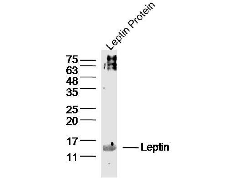 image for anti-Leptin (LEP) (AA 1-50) antibody (ABIN668243)