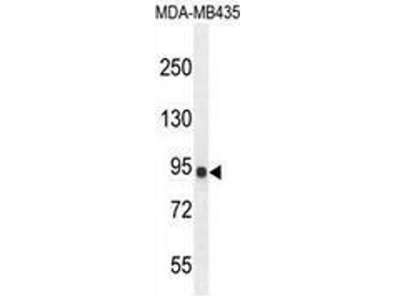 Western Blotting (WB) image for anti-IL12RB2 antibody (Interleukin 12 Receptor, beta 2) (AA 759-788) (ABIN952881)
