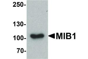 Image no. 3 for anti-Mindbomb E3 Ubiquitin Protein Ligase 1 (MIB1) (C-Term) antibody (ABIN6656460)
