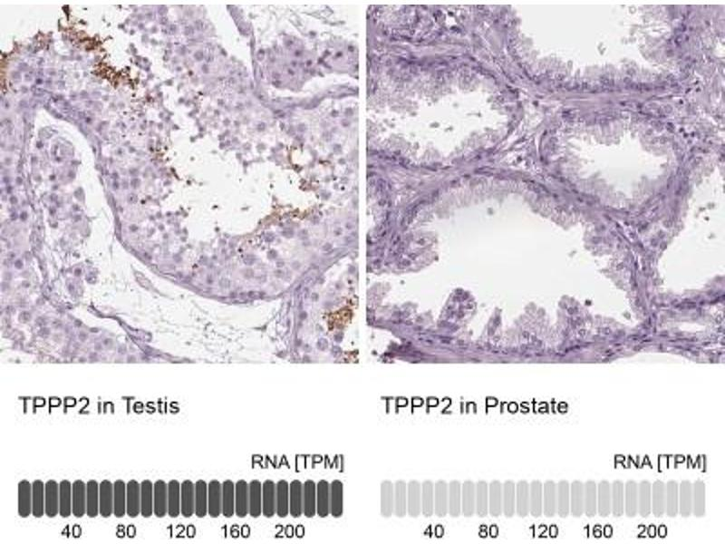 Immunohistochemistry (Paraffin-embedded Sections) (IHC (p)) image for anti-Tubulin Polymerization Promoting Protein 2 (TPPP2) antibody (ABIN4361518)