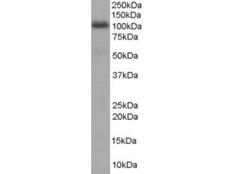 Western Blotting (WB) image for anti-A Kinase (PRKA) Anchor Protein 8 (AKAP8) (N-Term) antibody (ABIN250209)