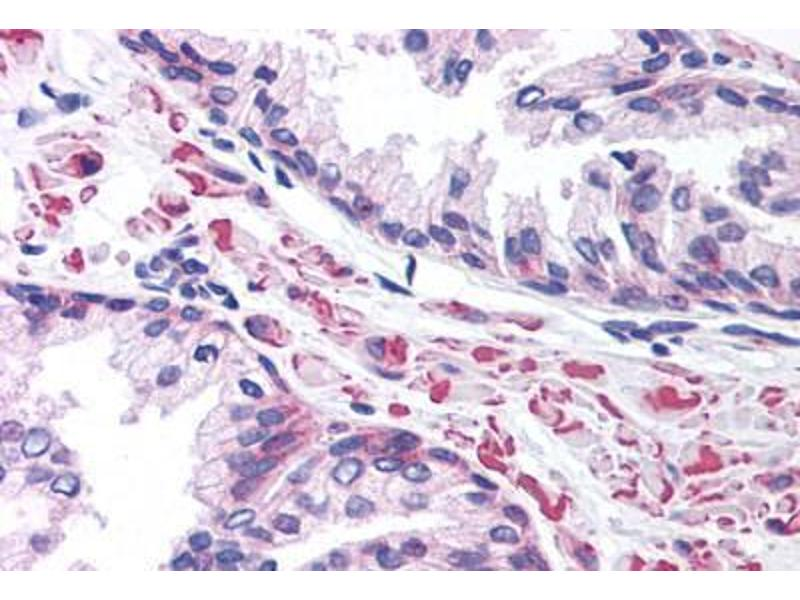 Immunohistochemistry (Paraffin-embedded Sections) (IHC (p)) image for anti-Lymphoid Enhancer-Binding Factor 1 (LEF1) (AA 51-100) antibody (ABIN214792)