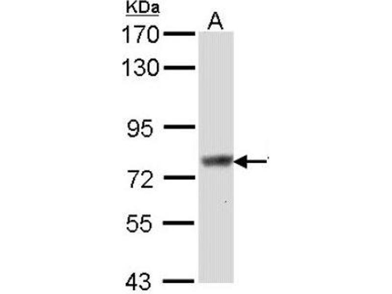 Western Blotting (WB) image for anti-Scinderin (SCIN) (Center) antibody (ABIN441714)