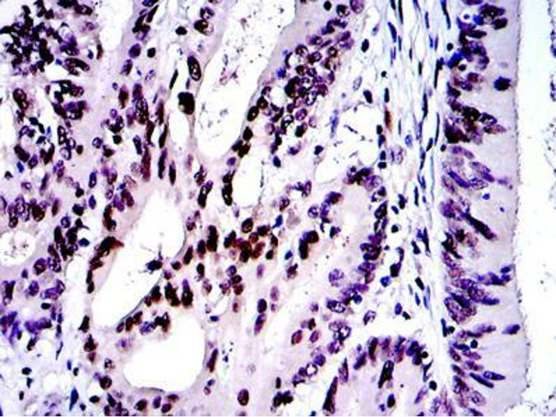 Immunohistochemistry (IHC) image for anti-Jun Proto-Oncogene (JUN) antibody (ABIN968995)
