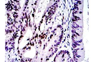 Immunohistochemistry (IHC) image for anti-C-JUN antibody (Jun Proto-Oncogene) (ABIN968995)