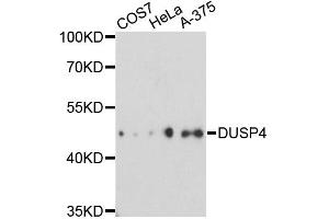 Image no. 1 for anti-Dual Specificity Phosphatase 4 (DUSP4) antibody (ABIN6569333)